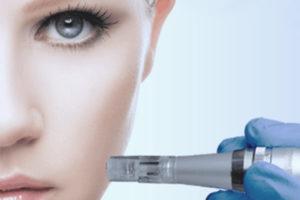 Iglična Mezoterapija - micro needling