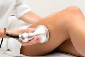 Anticelulitna ultrazvočna kavitacija